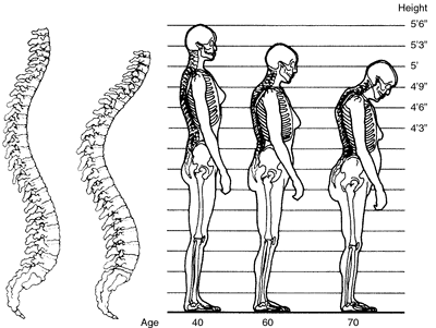 cambios-osteoporosis