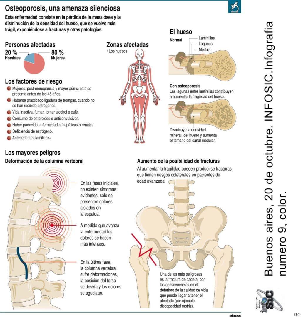 como-se-forma-una-osteoporosis